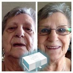Look younger in 2 minutes with Instantly Ageless Brow Lift, 9 Hours, Under Eye Bags, Natural Eyebrows, Hooded Eyes, Look Younger, Facial, Lost, Skin Care