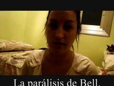 Parálisi de Bell cuidados y ejercicios - YouTube