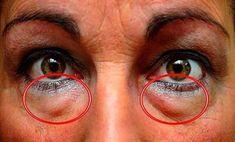 Dark Circles Under Eyes, Eye Circles, Under Eye Bags, Puffy Eyes, Healthy Beauty, Blackhead Remover, Natural Treatments, Natural Remedies, Hair Loss