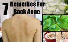 Remedies For Back Acne
