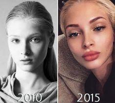 Alena Shishkova obočie pred a po Face Fillers, Botox Fillers, Dermal Fillers, Contour Makeup, Lip Makeup, Botox Lips, Lip Surgery, Alena Shishkova, Lip Shapes