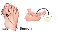 9. Proper Footwear To minimize your chances of developing a bunion as well as reduce the need for surgery if you already have one, pay attention to your footwear. Always opt for footwear with wide front, broad toes and soft soles. Use padded shoe inserts to help distribute pressure evenly when you move your feet. … Continue reading Home Remedies for Bunions