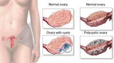 How to Clean and Remove Ovarian and Uterine Cysts