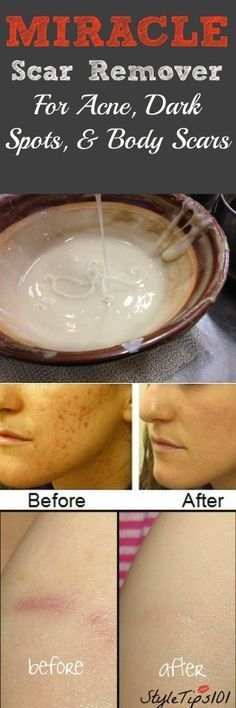 Scar Remover In a medium sized bowl, mix all ingredients together until they form a thick paste. Add more lemon juice if the mixture is too thick or any other ingredient to make the paste stick to your skin. Apply to affected areas (where scars reside) and leave on for 20 minutes. Lay back and relax as the mask takes effect. Rinse off and pat dry. Follow up with a light moisturizer.