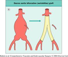 Abdominal Aortic Aneurysm Repair   Abdominal Aortic Aneurysm repair :