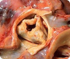Gross pathology of rheumatic heart disease: aortic stenosis. Aorta has been removed to show thickened, fused aortic valve leaflets and opened coronary arteries from above. Signs Of Heart Failure, Bicuspid Aortic Valve, Aortic Valve Replacement, Aortic Stenosis, Rheumatic Fever, Heart Valves, Atrial Fibrillation, Heart Disease, Leaflets