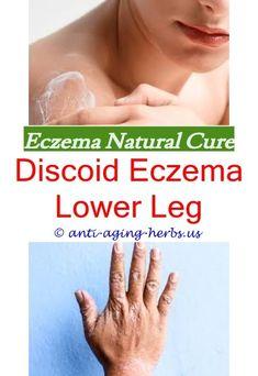 What Causes Eczema On Legs Fastest Way To Heal Eczema,biotin eczema.How To Treat Eczema How Do You Get Rid Of Eczema Fast Foods For Eczema Control Chronic Hand Eczema Remedies For Severe Eczema,scalp eczema treatment best topical for eczema - baby eczema Eczema Around Eyes, Eczema On Eyelids, Eczema Shampoo, Face Eczema, Eczema On Hands, Nummular Eczema, Get Rid Of Eczema, Eczema Causes, Severe Eczema