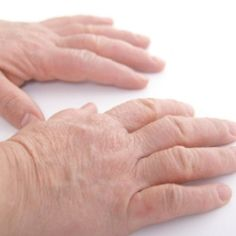 Natural Cures for Hand Eczema/Dermatitis. Actually, these are all great for Eczema/Dermatitis anywhere on the body.