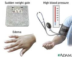 Nursing Care Plan   Pregnancy Induced Hypertension (PIH; Preeclampsia and Eclampsia)