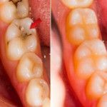 Zubní lékaři to drží v tajnosti! Zubní kaz zcela zmizí, pokud na zub