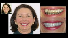 Restoring faded bonding with new porcelain veneers & a smile makeover. Cosmetic dentistry by Dr. Mike Maroon of Advanced Dental in Berlin, CT.