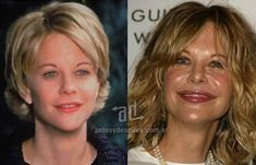 20 Celebrities with Breast Augmentation Botched Plastic Surgery, Bad Plastic Surgeries, Celebrity Plastic Surgery, Meg Ryan, Botox Results, Chin Reduction, Neck Liposuction, Celebs Without Makeup, Botox Alternative