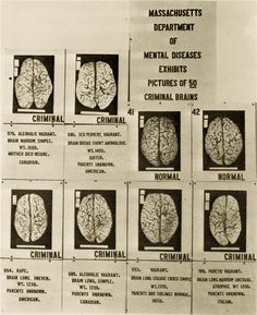 Poster by Massachusetts department of mental diseases showing pictures of 50 criminal brains (1921). National Library of Medicine/Cold Spring Harbor Laboratory Archives.