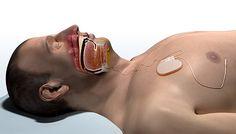 inspire diagram Inspire Implant for Obstructive Sleep Apnea FDA Approved (VIDEO)