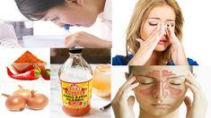 Sinusite aiguë: Remèdes maison pour la soulager