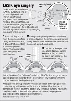 Information graphics for LASIK eye surgery with link to acupressure for eye Yeast Infection On Skin, Eye Cataract, Whitening Cream For Face, Skin Whitening, Lasik Eye Surgery, Eye Facts, Health And Fitness Expo, Vision Eye, Studio