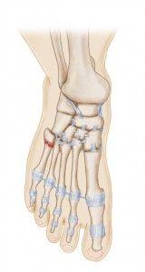 36 Best Jones Fracture Images Jones Fracture Bones Ankle Fracture