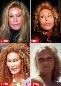 Here are Plastic Surgery Gone Wrong – 20 Worst Celebrity Surgery Before After Photos. Celebrity plastic surgery gone wrong is a disaster for people who make their living in the limelight. Check out the 20 worst celebrity plastic surgery results. Bad Celebrity Plastic Surgery, Botched Plastic Surgery, Bad Plastic Surgeries, Plastic Surgery Gone Wrong, Plastic Surgery Addiction, Celebrity Surgery, Worst Celebrities, Celebs, Celebrities Before And After