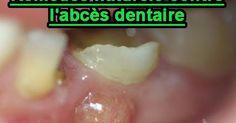 Un abcès se traduit par des signes caractéristiques : sensibilité de la dent à la pression, douleurs au chaud... Comment se débarrasser de l'Abcès dentaire naturellement?