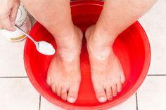 Discover black toenail fungus home remedies (eg. Listerine, vinegar, apple cider vinegar foot soak) and other treatment options for nail fungal infections. Best Toenail Fungus Treatment, Nail Infection Treatment, Toenail Fungus Cure, Fungal Nail Infection, Fungus Toenails, Natural Treatments, Natural Cures, Baking Soda Nails, Foot Detox Soak