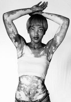 WZORY - vitiligo project on Behance