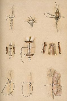 Diagrams illustrating the variety of surgical stitches and wound ties; early 20th century.