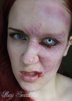 swelling under eye - Google Search   Silicon sfx scars and ...