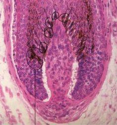 melanocito-no-foliculo