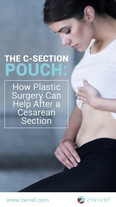 you recently gave birth by cesarean section, you might have noticed a puffy pouch of loose skin resting on or just above your surgery scar. Fortunately, there are options available to address c-section scarring and the postpartum belly. C Section Pouch, C Section Belly, C Section Scars, Mini Tummy Tuck, Tummy Tucks, Tummy Tuck Before After, Excessive Underarm Sweating, Belly Pouch, Muscle Disorders