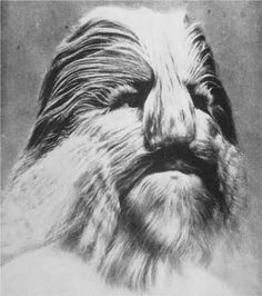 Lionel - the Lion faced boy.  Born in 1890 and suffered from hypertrichosis.