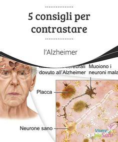 5 consigli per #contrastare #l'Alzheimer  L'Alzheimer è una delle #malattie #neurodegenerative più comuni e si manifesta soprattutto nelle persone di più di 65 anni, nonostante possa svilupparsi anche in persone più giovani.
