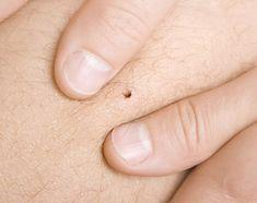 Les tiques sont des petits parasites, de la famille des araignées, des acariens et des scorpions qui peuvent être porteurs de différentes maladies.