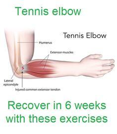 Exercises For Tendonitis, Tendinitis Elbow, Tennis Elbow Relief, Tennis Elbow Symptoms, Golfers Elbow Exercises, Tennis Elbow Stretches, Better Posture Exercises, Daily Stretches, Arm Workout Men
