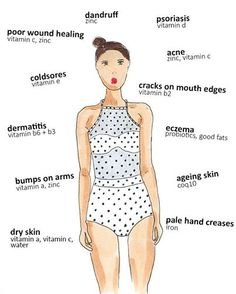 OURR SKIN IS THE LARGEST ORGAN OF OUR BODY There are lots of interesting things you can tell about your health just by taking a glance at your skin. Check out our list of skin conditions and what nutritional signs they're giving you below. Vitamins For Psoriasis, Vitamins For Skin, Psoriasis Diet, Health Vitamins, Health And Nutrition, Health And Wellness, Health Fitness, Fitness Life, Health Remedies