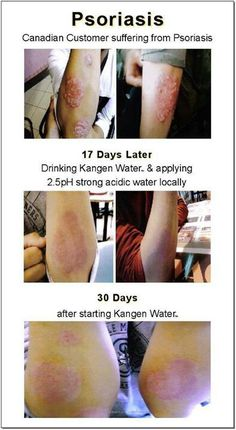 Psoriasis After Using Kangen Water For 30 Days. Many medical experts claim Kange… Psoriasis Arthritis, Psoriasis Diet, Arthritis Diet, Psoriasis Remedies, Rheumatoid Arthritis Symptoms, Types Of Arthritis, Arthritis Remedies, Agua Kangen, Kangen Water Benefits