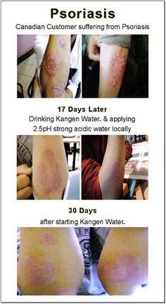 Psoriasis After Using Kangen Water For 30 Days. Many medical experts claim Kange… Psoriasis Arthritis, Psoriasis Diet, Arthritis Diet, Psoriasis Remedies, Rheumatoid Arthritis Symptoms, Types Of Arthritis, Arthritis Remedies, Arthritis Treatment, Agua Kangen