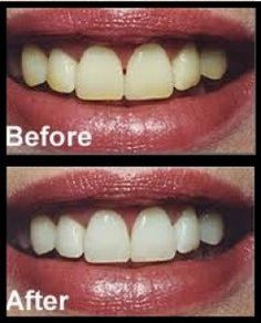 homemade teeth whitening before and after