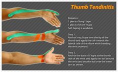 Kinesiology taping instructions for tendinitis of the thumb #ktape #ares #tendinitis #thumb