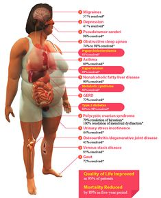 """Bariatric Surgery - Weight Loss Solutions:Successful, permanent weight loss is possible and affordable at """"Weight Loss Solutions"""" one of our programs at the Bahamas Medical Center. http://bahamasmedicalcenter.com/medical-service-procedures/bariatric-surgery-weight-loss-solutions/"""