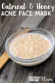 Do you suffer from acne? If so, you know that acne imparts a unique blend of embarrassment and frustration on the sufferer. There's no need to shell out big bucks on expensive acne fighting creams when you can whip up this homemade acne face mask qu Homemade Face Masks, Homemade Skin Care, Diy Face Mask, Homemade Beauty, Diy Beauty, Beauty Tips, Beauty Care, Facemask Homemade, Beauty Hacks