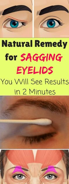 Natural Remedy For Sagging Eyelids You Will See Results In 2 Minutes!We blink our eyes a lot of time in the day. Have you ever wonder what helps us to open and close our eyes? There is a ring of muscle which encircles our eyes a Beauty Care, Beauty Skin, Health And Beauty, Healthy Beauty, Face Beauty, Beauty Secrets, Beauty Hacks, Beauty Products, Beauty Ideas