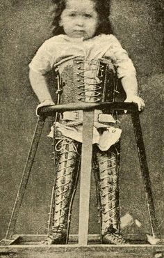Braces for a child with spinal Cerebral Palsy, from August Schreiber's General and Special Orthopedic Surgery, with the inclusion of orthopedic operations, 1888