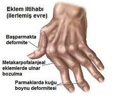 Bugün ellerde eklem yangısı ağrısı için 7 doğal tedavi yolundan bahsedeceğiz. Biraz rahatlama ve belirtileri azaltma için denemeye değer!