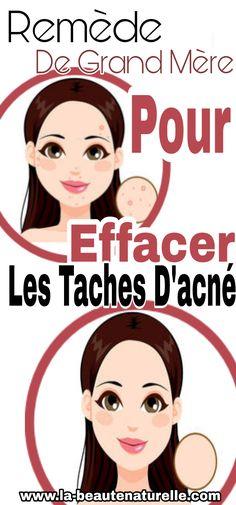 Remède de grand mère pour effacer les taches d'acné Beauty Habits, Beauty Makeup Tips, Diy Beauty, Acne Dos, Acne Solutions, Rosacea, Take Care Of Me, All Things Beauty, Health And Beauty