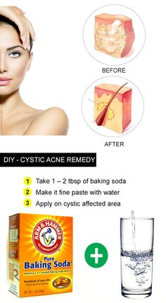 DIY Home Remedies for Cystic Acne