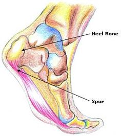 Heel Bone Spur Treatment, Causes, Removal pin leads to an amazing site with lots of info on many things <3 this site :)