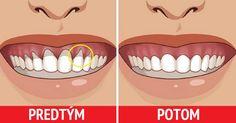 Paradentóza je problém, ktorý je tichým postrachom nás všetkých, aj keď si to mnohí neuvedomujeme. Z dôvodu, že je táto choroba neprenosná a nesprevádza ju ostrá a prudká bolesť, nechávame ju z nedbanlivosti zájsť príliš ďaleko. Namiesto prevencie potom musíme riešiť citlivé ďasná, kazy a uvoľnenie zubov ažpo ich úplnú stratu. Ak ste si všimli …