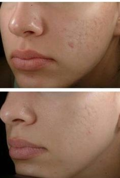 HOW TO GET RID OFF ACNE SCARS OVERNIGHT TRIED N TESTED #acnescarshowtogetridof