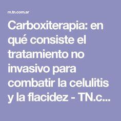 Carboxiterapia: en qué consiste el tratamiento no invasivo para combatir la celulitis y la flacidez - TN.com.ar