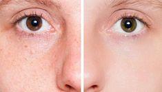 100% TCA Chemical PEEL Wrinkle Remover Repair Acne Scar Sun Damaged FACIAL skin